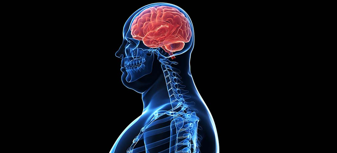 Overweight obese people with diabetes at increased risk of brain abnormalities img