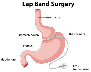 ap-Band Surgery Dallas, Gastric Sleeve Surgery Fort Worth TX
