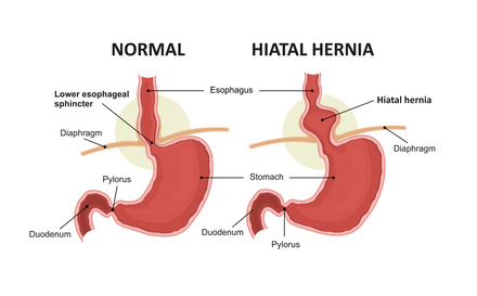 All You Need to Know about Hiatal Hernia
