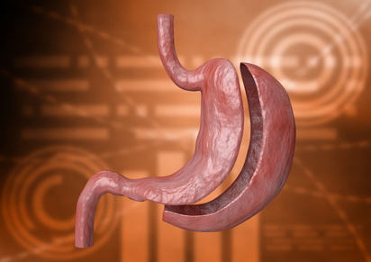 Gastric Sleeve Surgery Fort Worth TX, Sleeve Gastrectomy Surgery Dallas, Gastric Sleeve Surgery Dallas TX