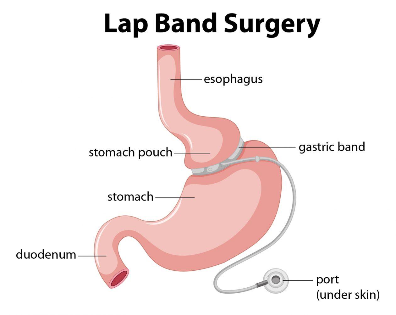 Lap-Band Surgery Dallas