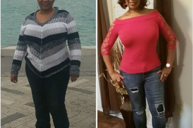 Common Types Of Bariatric Weight Loss Surgery