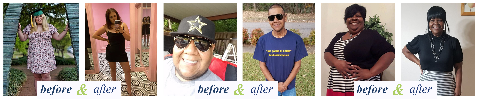 Weight Loss Surgery Dallas, Fort Worth