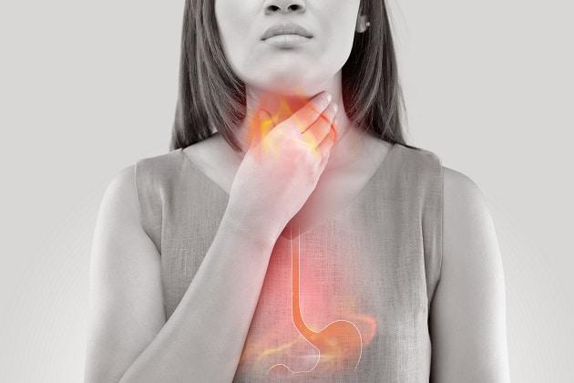 Understanding GERD: Symptoms, Causes, and Complications