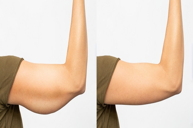 4 Ways to Promote Skin Elasticity After Weight Loss Surgery